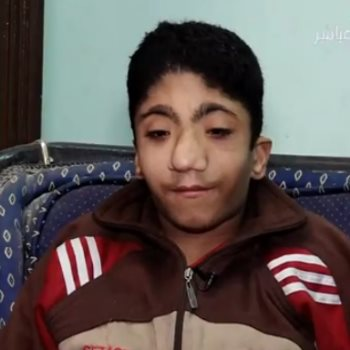 الطفل محمد يعانى من الصرع