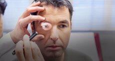 الكشف على العين - أرشيفية
