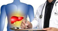 الالتهاب الكبدى  A