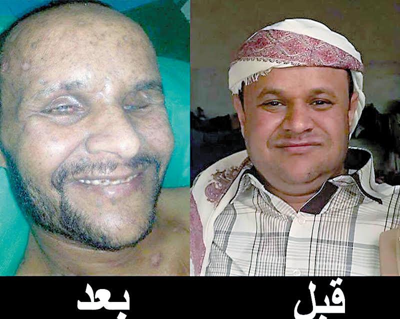 81041-أحد-المختطفين-عذبه-الحوثى-حتى-أفقده-البصر