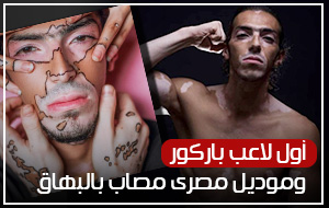 أول لاعب باركور وموديل مصري مصاب بالبهاق