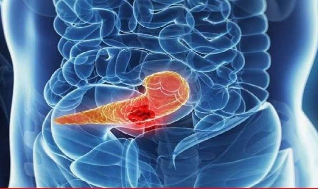 سرطان البنكرياس