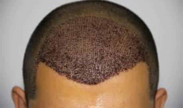 زراعة شعر