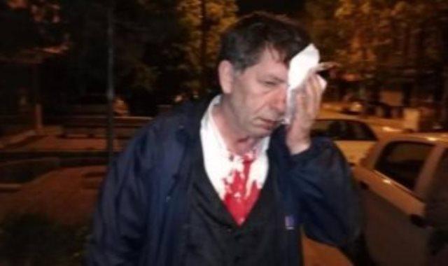 الصحفى التركي بعد الاعتداء عليه
