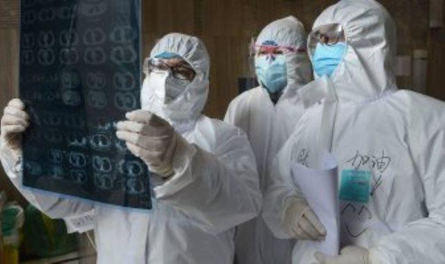سبب انتشار فيروس كروونا بالرئة