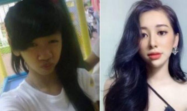 الفتاة قبل وبعد عملية التجميل