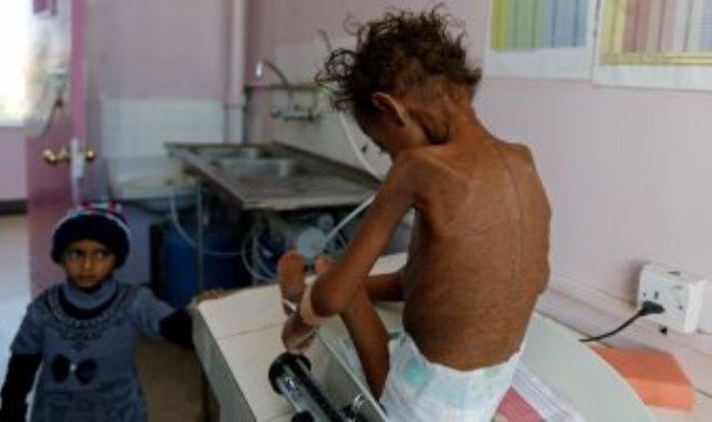 طفل مصاب بسوء التغذية