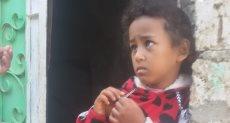مأساة طفلة من بنى سويف مصابة بسرطان العين
