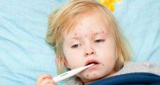 مرض الحصبة