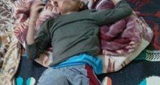 """أول صور لطفل المنوفية المعتدى عليه بـ""""أنبوبة"""""""