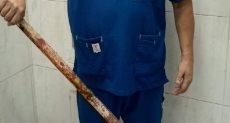 طبيب يعرض الماسورة بعد نجاح العملية الجراحية